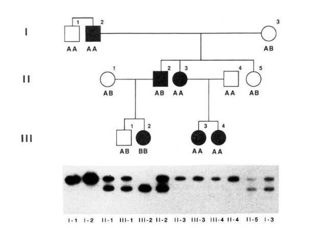 acondroplasia pedigree
